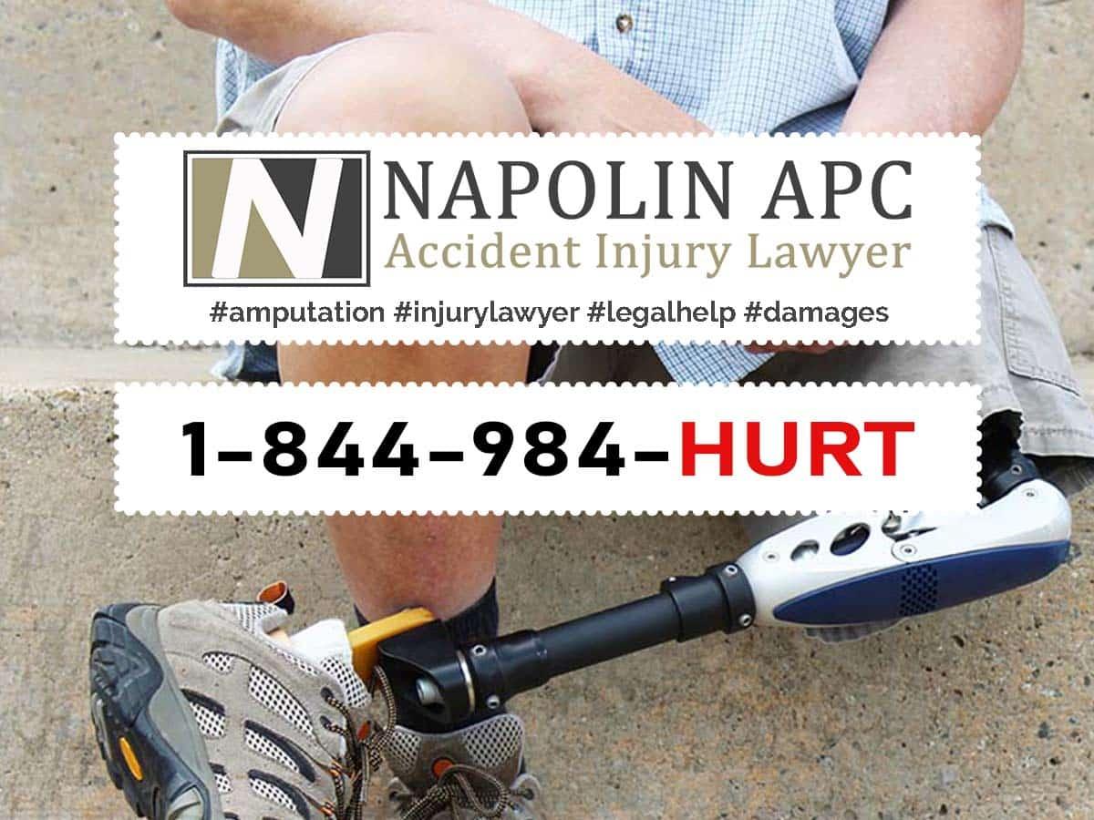 Napolin Amputation Injury Lawyer